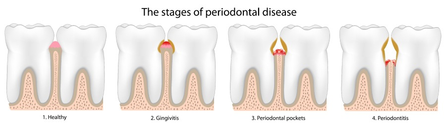 Artistic rendering of the stages of periodontal or gum disease