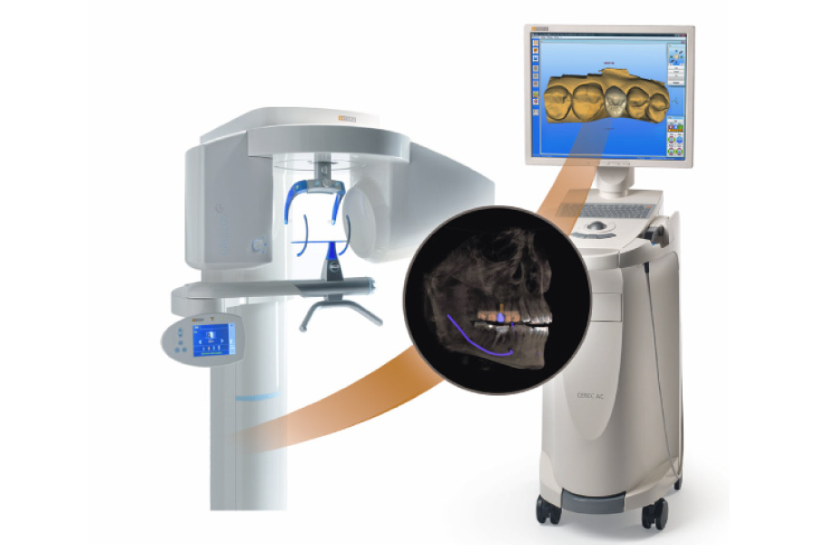Cartoon image of the CEREC same-day crown technology