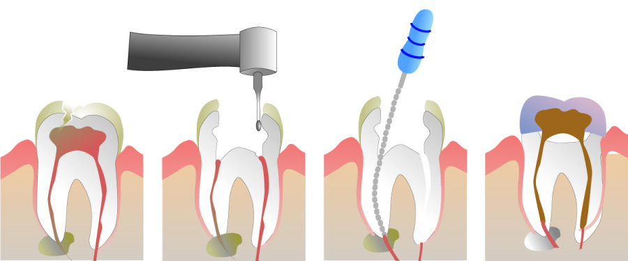 Visual showing four stages of root canal treatment