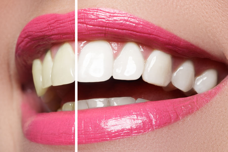 A closeup pink lipped smile showing a whiter half after professional teeth whitening